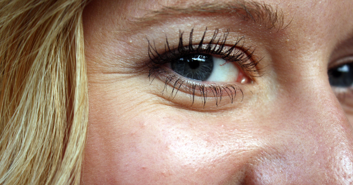 closeup of wrinkles around a woman's eye