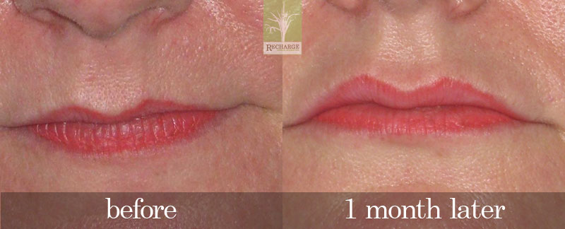 Dermal fillers - Recharge Medical