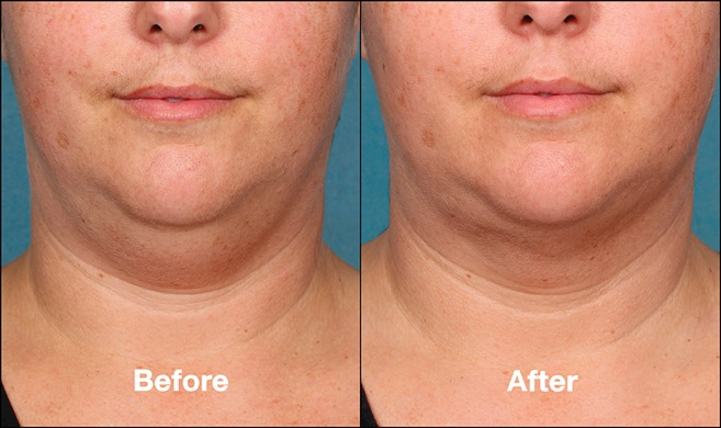 Kybella Treatment Recharge Medical