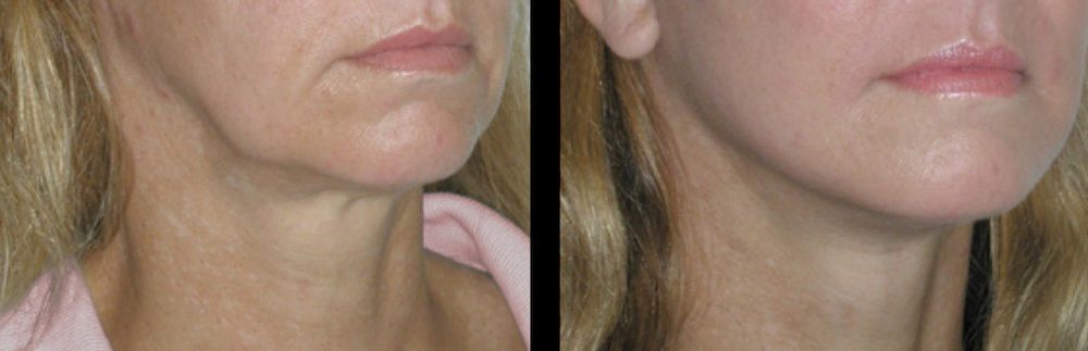 thread lift before and after, your results may vary